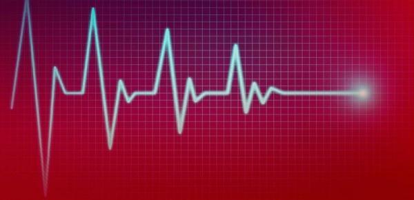 Saiba mais sobre o curso Eletrocardiograma para Enfermeiros