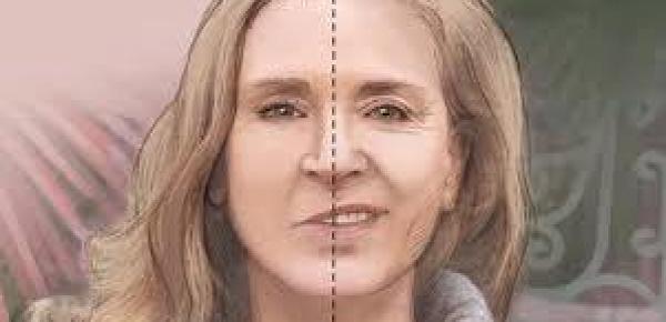 Saiba mais sobre o curso Fonoaudiologia na Paralisia Facial