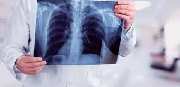 Saiba mais sobre o curso Introdução a Radiologia